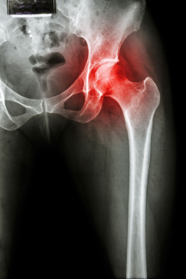 csípőízület fájdalom műtét után