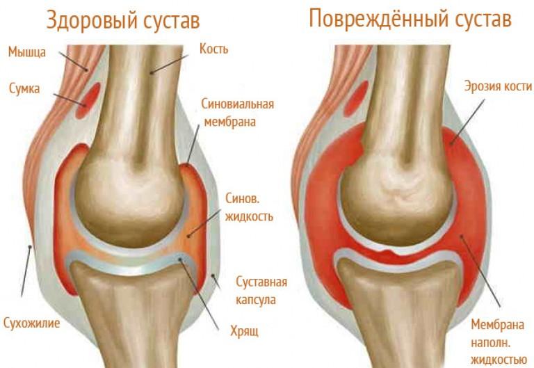 térdödéma artrózis kezelés