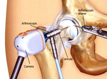 térd porcleválás tünetei a hüvelykujj gyulladása a lábán