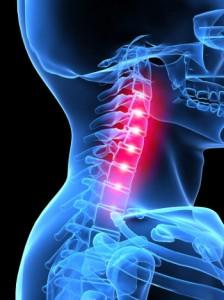 Mi a legjobb kenőcs a nyaki osteochondrosisra?