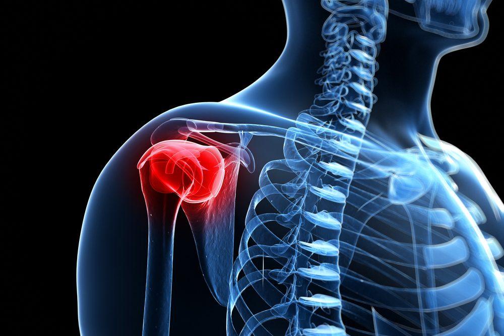 fáj a nyaki ízület a térdízület ízületi gyulladását kezelik