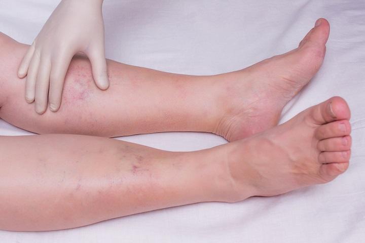 dimexidum ízületi fájdalmak esetén