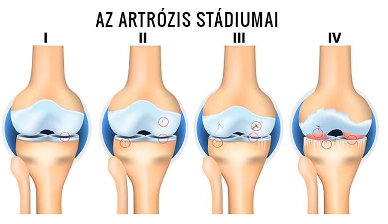 Az arthrózis kezelése 1.