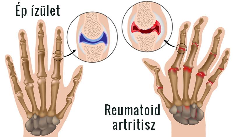 hirtelen kézízületi betegség sócsomagolások ízületi betegségek esetén