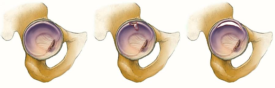 hivatásos csípő sérülések
