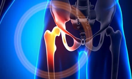 asparkum és ízületi fájdalmak
