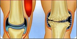 hogyan kezeljük a lábakat artrózissal