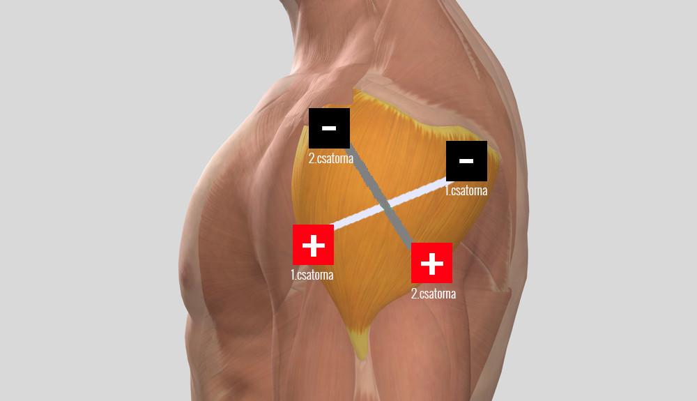 hogyan lehet kezelni a váll artrózisát