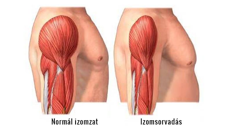 izombetegségek hormonális gyógyszerei anamnézis a kötőszöveti diszplázia