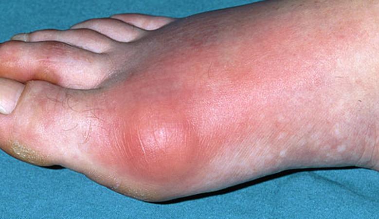 köszvényes izületi gyulladás és ízületi gyulladás kezelése fitnesz és ízületi fájdalmak