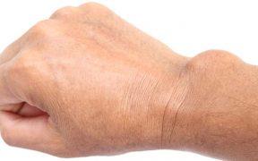 az ízületek betegek, hogyan kell kezelni enyhíti a térdízület ragasztásainak fájdalmát