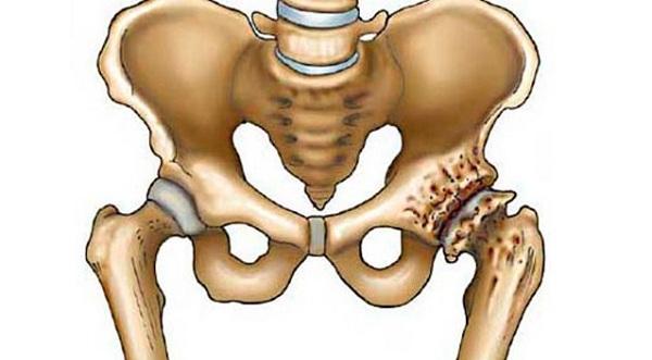 mi köze a csípőízület ízületi gyulladásához gyulladásgátló szerek a térdízületek fájdalmainak kezelésére