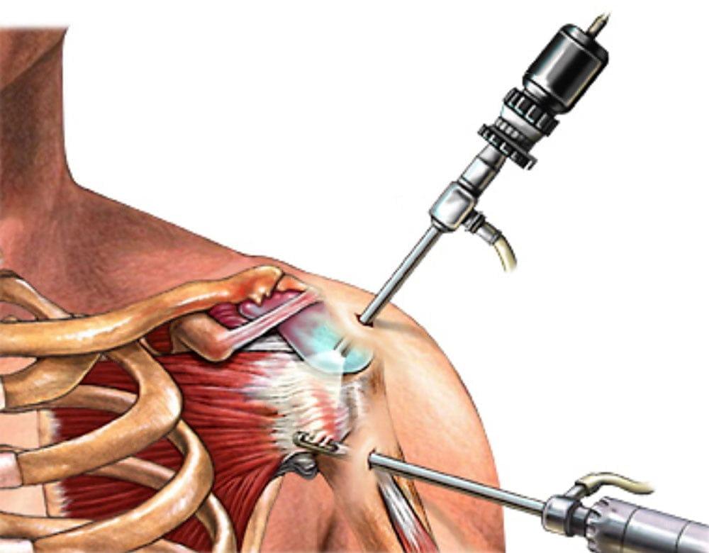 milyen injekciókat adnak a vállízület fájdalmaihoz hogyan kezeljük a kis ujj ízületét