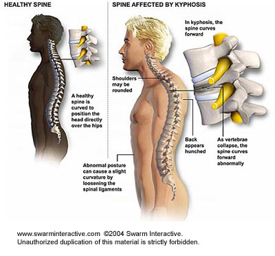 milyen kenőcsök segítik a nyaki gerinc csontritkulását térd artrózis elmozdító kezeléssel