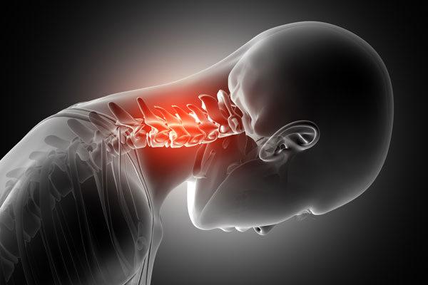 milyen kenőcsök segítik a nyaki gerinc csontritkulását boka ízületi gyulladás hatékony kezelése