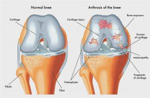 térdbetegség ligamentosis