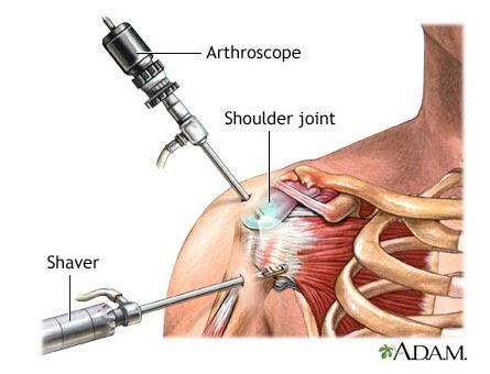 műtét utáni vállízület ín fájdalom repedések ízületek