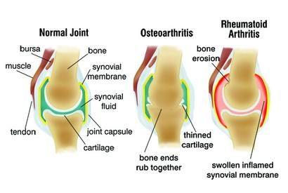 otthon kezelt artrózis jó ízületi gyógymód