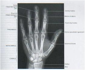 Térdprotézisek szeptikus szövődményeinek kezelése kétfázisú rekonstrukcióval*