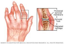 rheumatoid ízületi gyulladás
