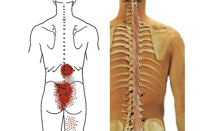 kattintson az ízületekre, mint kezelni ortopéd artrózis kezelés