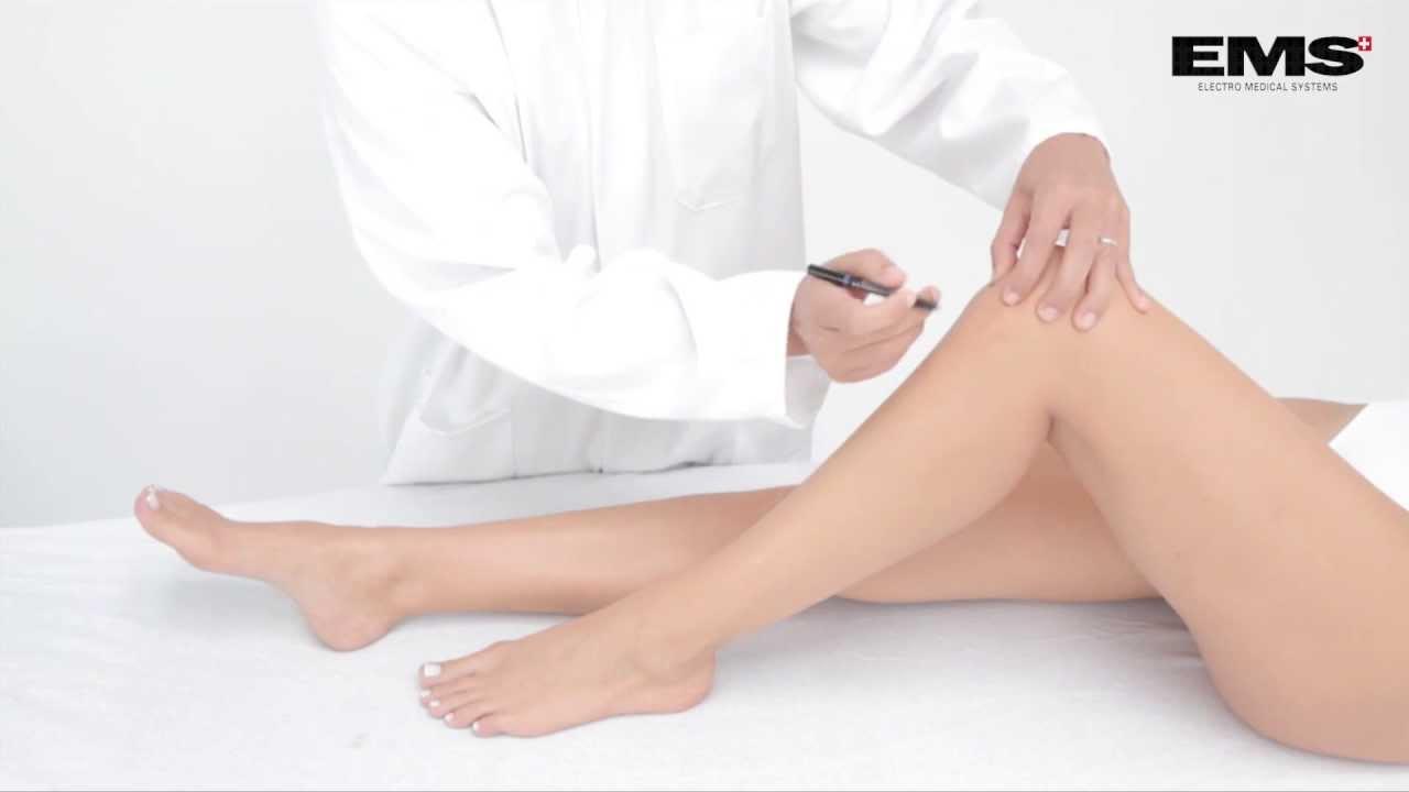 térd tendinosis kezelése