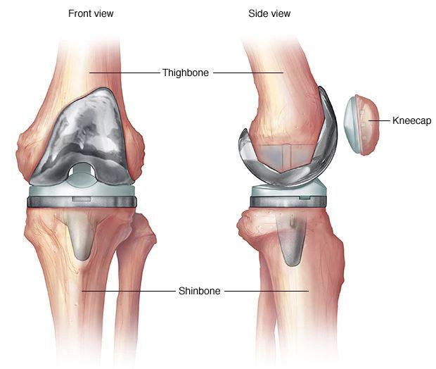 térdfájdalmak 33 év alatt a lábak karjainak ízületei