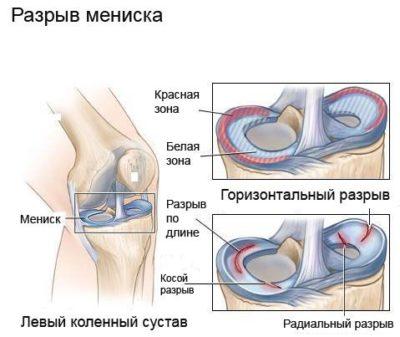 térdkapszula károsodása