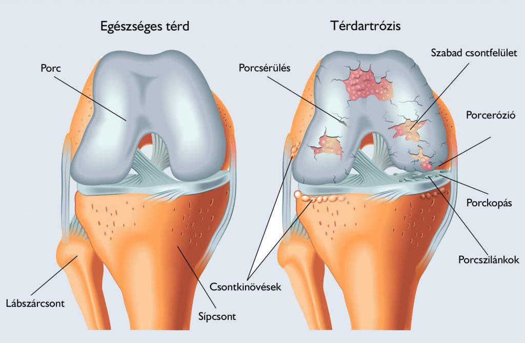 térdízület fáj a térd alatt csípő éjjel