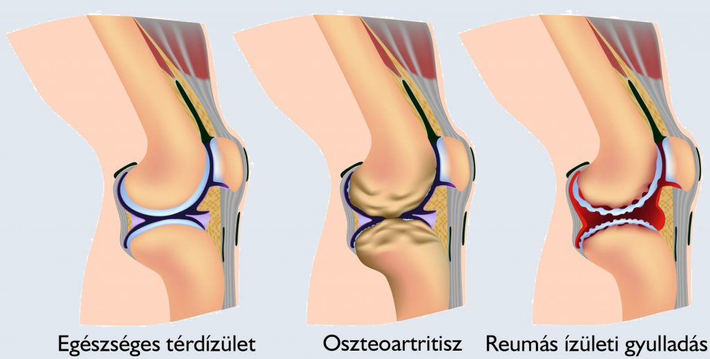 térdízületek ízületi gyulladás fájó térd tünetek