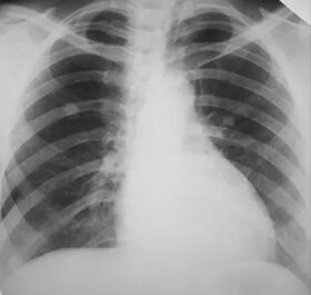 vállfájdalom tüdőrákban