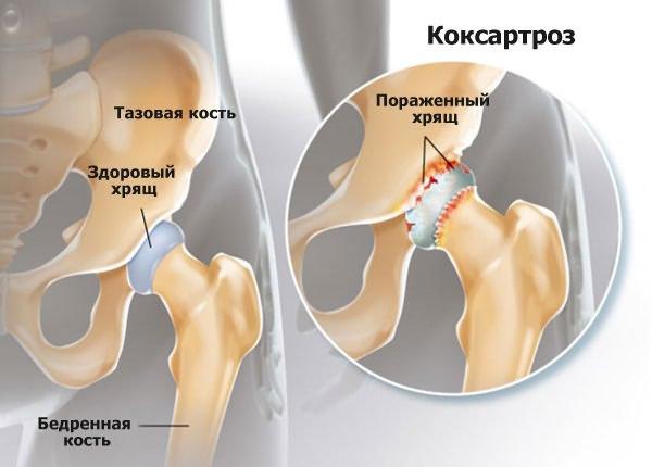 vállízület osteoarthrosis 2 fokos, mint a kezelés