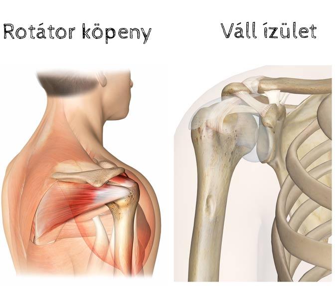 vállízület osteoarthrosis kórtörténetét
