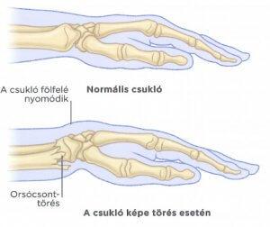 ízületi fájdalom a kéz közelében