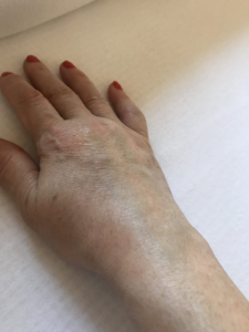 ízületi fájdalom bursitis
