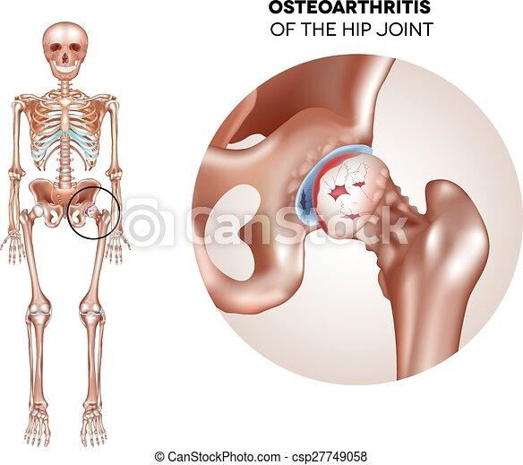ízületi gyulladás a csípőn a középső ujj falának ízülete fáj