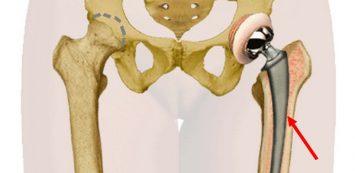 ízületi és csípőízület kezelése mi okoz fájdalmat a láb ízületeiben