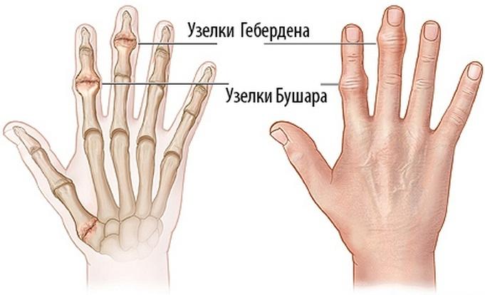 Kezelje a kézízületek fájdalmát. Ízületi fájdalmak okai és kezelése