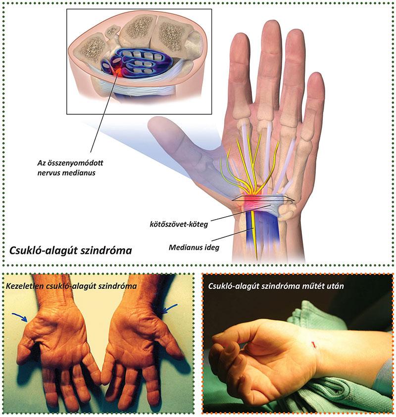 Ínhüvelygyulladás: okok, tünetek, kezelés és megelőzés