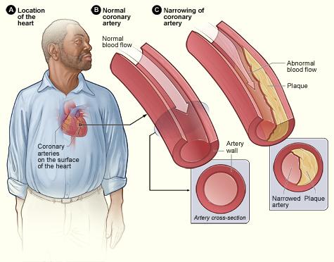 Pajzsmirigy betegség tünetei