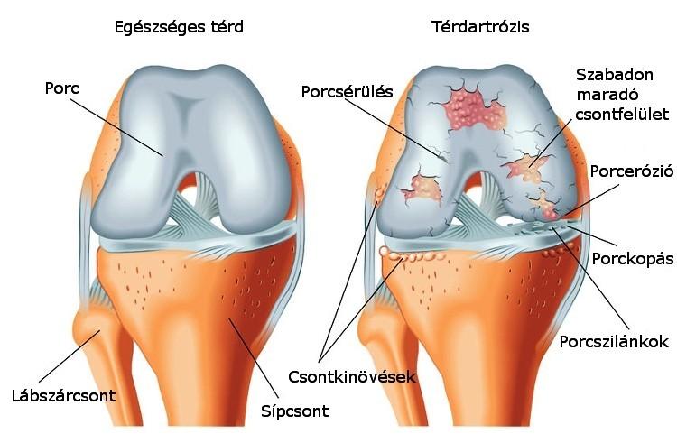hogyan kezeli a réz az artrózist