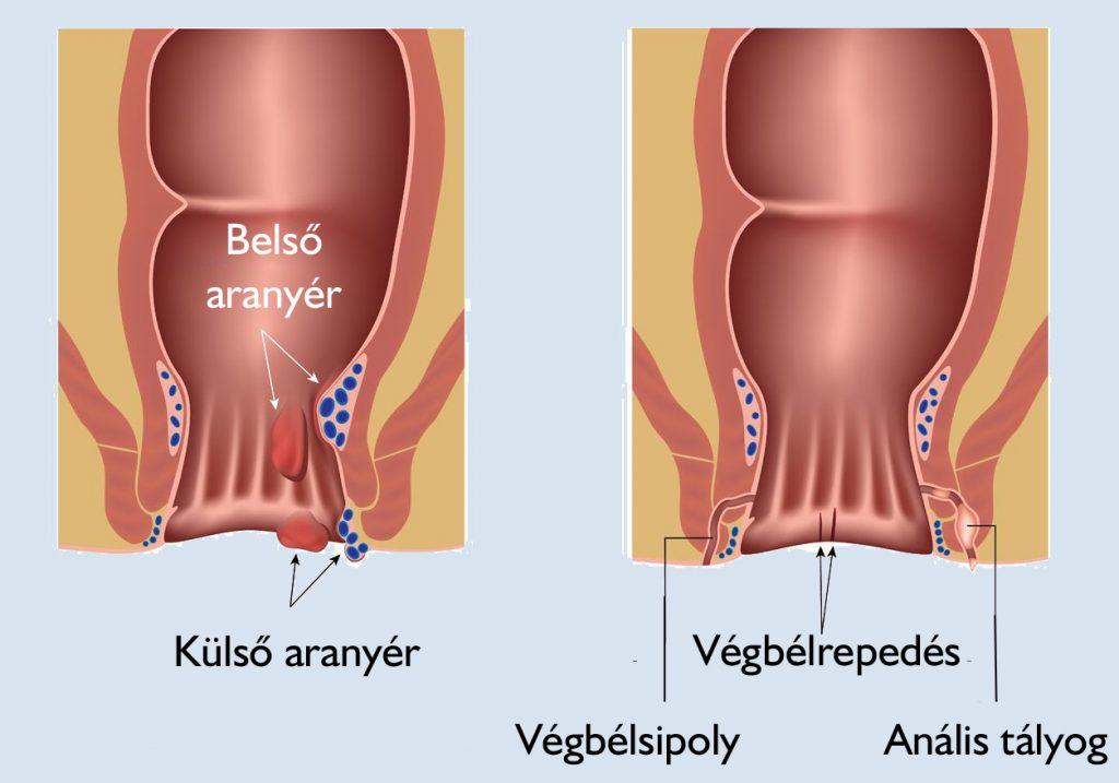Lehet- e az alsó has a prostatitisből prosztata megnagyobbodás alternativ kezelése