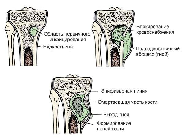 ahol a csípőízületek fájnak