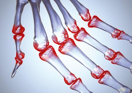 hogyan lehet gyorsan eltávolítani a lábízület gyulladását ízületi gyulladásos és ízületi gyógyszerek kezelése