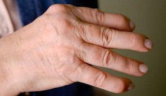 mi befolyásolhatja az ízületi fájdalmakat