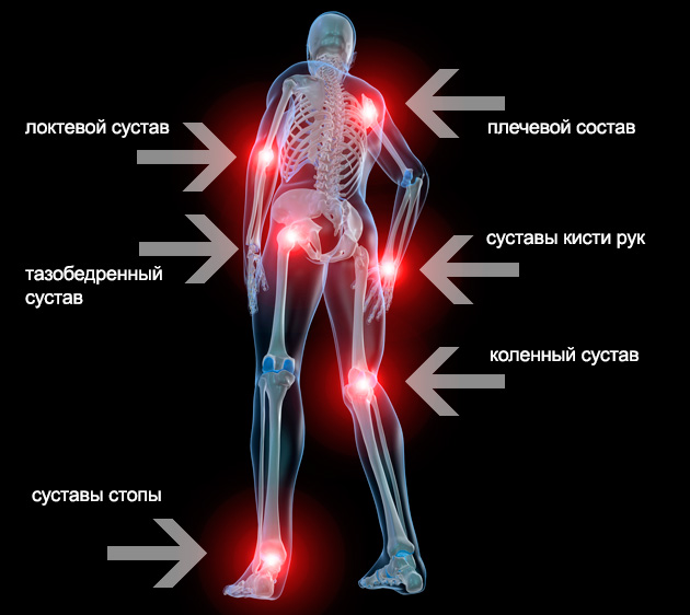 a térd gonartrosisának kezelése 2 fokkal