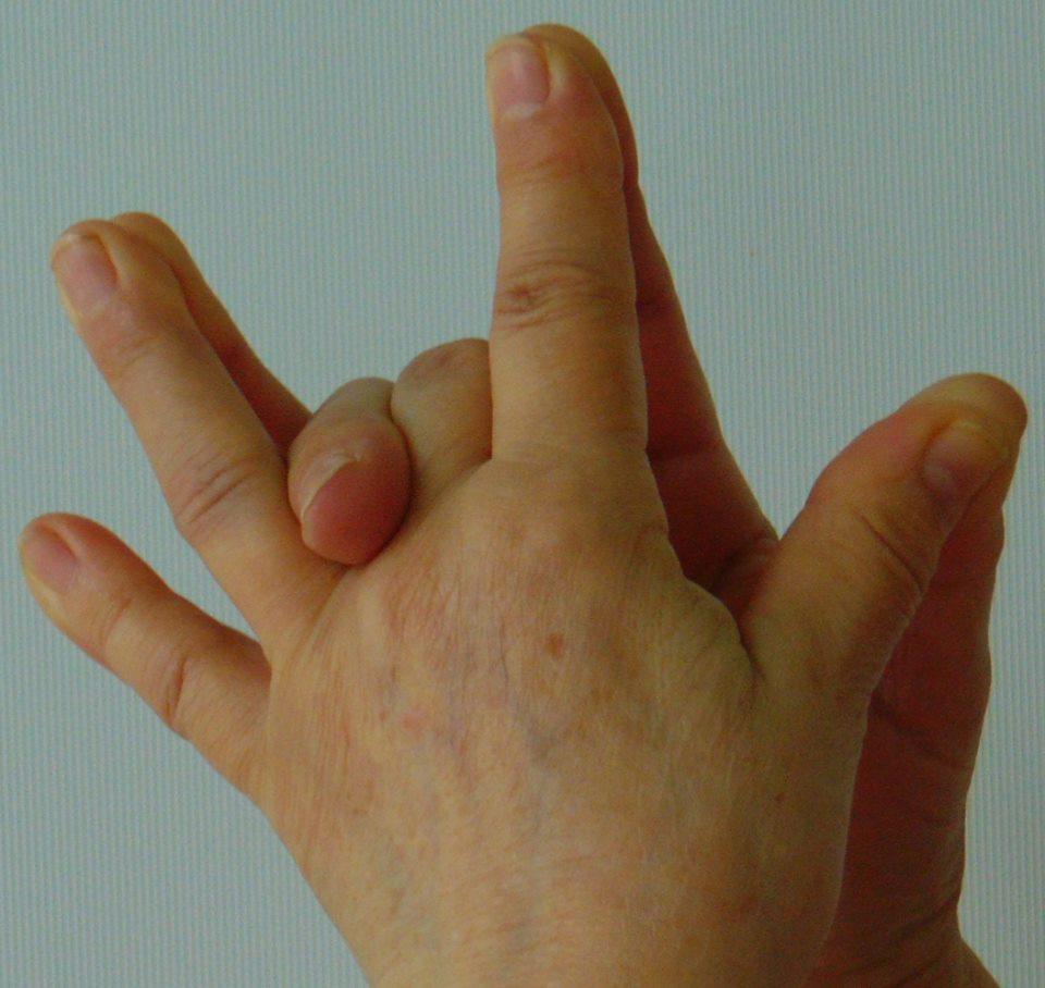 ízületi gyulladás és a kézkezelés kezelése