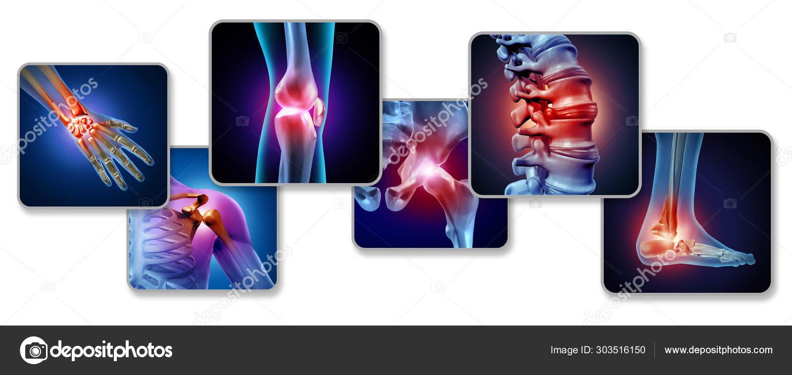 az alsó végtagok ízületei, mint a kezelés céljából ujjgyulladás kezelés homeopátia